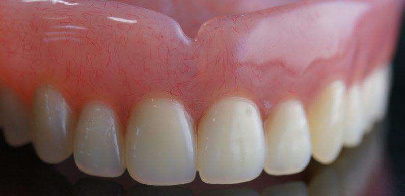 Top 4 Reasons To Get Dentures